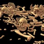 Schädel, Wirbel, Zehen